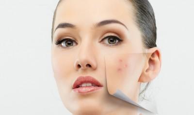 Tips &Trik Samarkan Bekas Jerawat Menggunakan Makeup